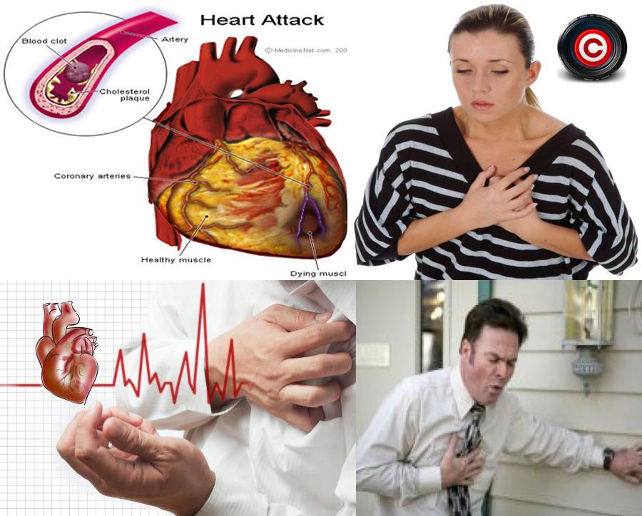 Cum poti să supraviețuiești unui atac de cord când ești singur