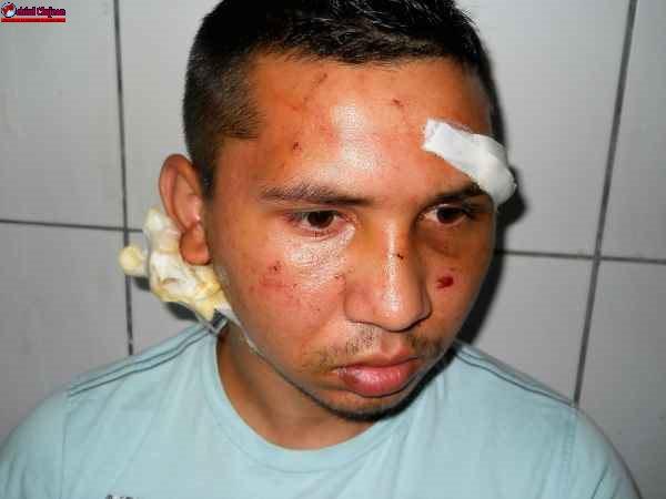 Tânăr din Câmpia Turzii, bătut și jefuit chiar în autobuzul firmei FOTO