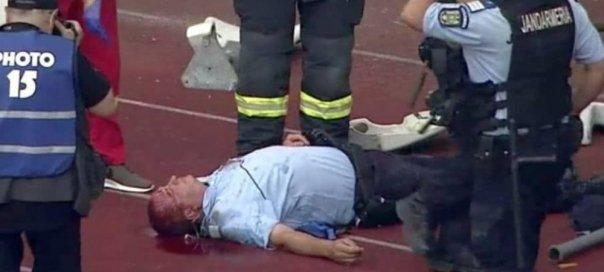 Detalii despre starea jandarmului rănit pe Cluj Arena
